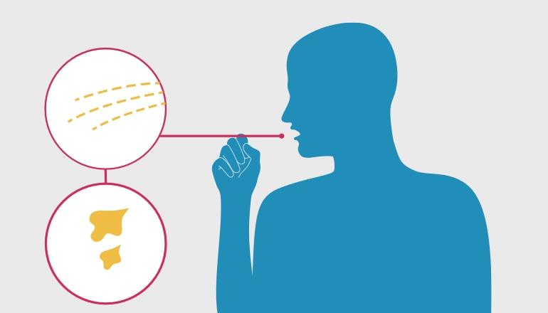 Ilustracja przedstawiająca mężczyznę odkrztuszającego śluz, który jest objawem ostrego zapalenia oskrzeli